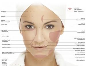Liquid Facelifts Treatment