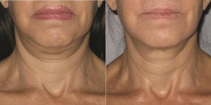 Ultherapy Face and the Neck Lift