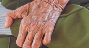 388x210_Leprosy_vs._Psoriasis