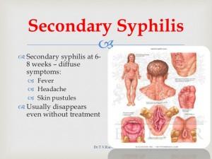 syphilis-basics-37-728