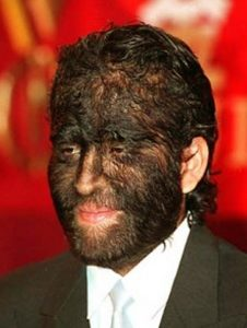 hypertrichosis-pictures-2