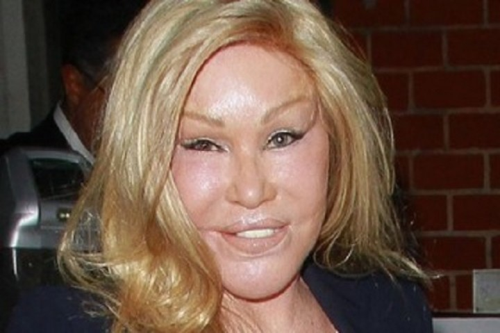 The Worst Plastic Surgery Disasters